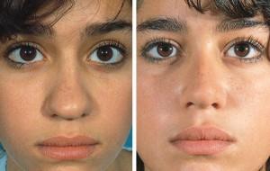 Başarılı Ameliyat Burun ve Göz